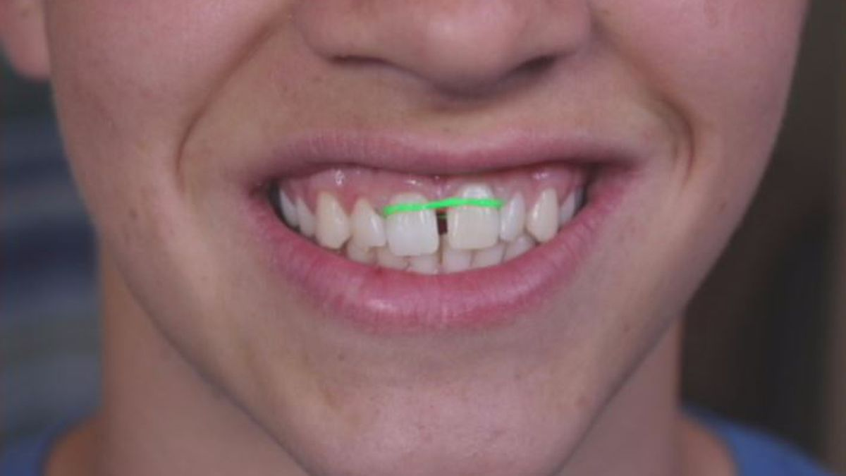 The Danger Of Do It Yourself Braces