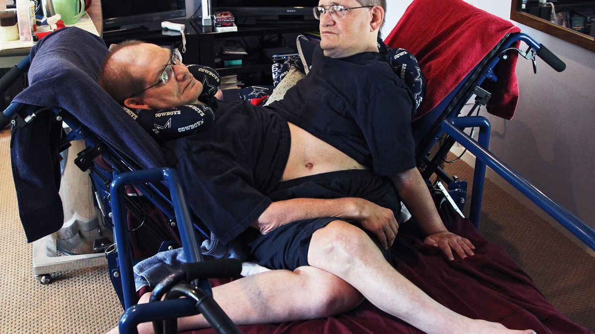 Conjoined twins, Ronnie and Donnie Galyon of Beavercreek, passed away